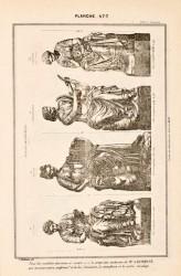 DUR_1889_PL477 – Statues décoratives